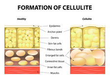 Formation of cellulite. Forming of cellulite. Human anatomy. Vector illustration Royalty Free Stock Photography