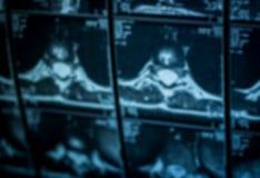 Formation image de résonance magnétique Photo stock