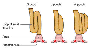 Formation of pouch following colostomy. Following removal of the colon, rectum and anus, a pouch is formed from remaining small intestine Royalty Free Stock Photography