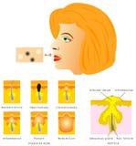 Formazione di acne della pelle Fotografia Stock