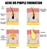 Formazione di acne o di brufolo della pelle Immagini Stock