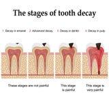 Formazione di carie dentaria Fotografia Stock