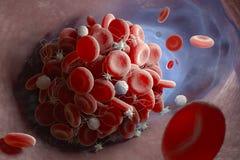 Formazione di coagulo di sangue royalty illustrazione gratis