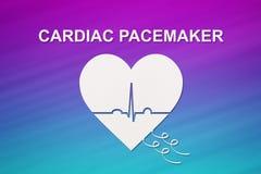 Forme de coeur avec l'échocardiogramme et le texte de STIMULATEUR CARDIAQUE Concept de cardiologie Photographie stock