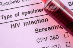 Forme de test de dépistage d'infection par le HIV Photo stock
