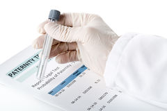 Formulário do resultado da análise da paternidade com o doutor que guarda o cotonete oral no te foto de stock
