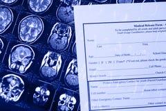 Formulário médico das receitas e a ressonância magnética e o raio X imagens de stock