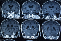 Forschung in der Medizin Ct-Scan des Patienten stockfotografie