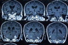 Forskning i medicin Ct-bildläsning av tålmodign Arkivbild
