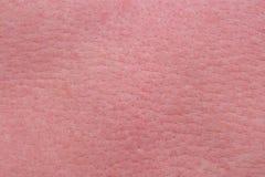 Forte pelle di solarizzazione Immagine Stock