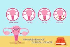 Fortgång av cervikal cancer vektor illustrationer