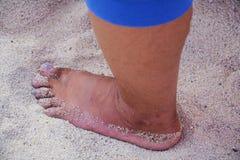 Fot ben på en sandstrand som går på sand Royaltyfria Bilder