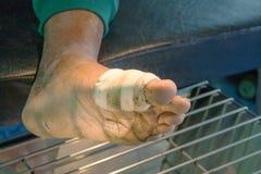 Fot smittad sår Arkivfoton