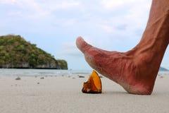 Fot som kliver på den brutna glasflaskan på stranden Arkivfoto