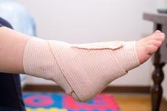 Foten med förbinder fotskadan som stukas foten, den stukade ankeln Arkivbild