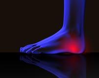 foten smärtar