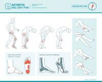 Foten smärtar och den infographic artrit Arkivbild