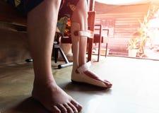 Foten spjälkar för behandling arkivbild