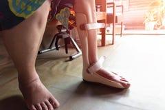 Foten spjälkar för behandling arkivbilder