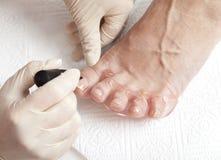 Foto av foten spikar att lacka processen, serie av foto Fotografering för Bildbyråer