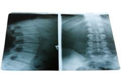 Foto de la radiografía Imágenes de archivo libres de regalías
