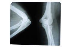 Foto de una radiograf?a humana de una junta en el ?rea del codo foto de archivo libre de regalías