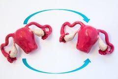 Foto del concepto del trasplante del útero Dos modelos anatómicos de útero con los ovarios con dos flechas que cruzan sobre uno a fotos de archivo libres de regalías