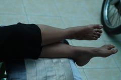 Foto del pie humano, versión 3 imagenes de archivo
