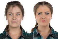 Foto der jungen Frau vor-nach bilden Stockbild
