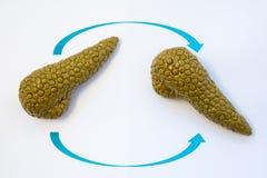Foto för bukspottkörteltransplantationbegrepp Två anatomiska modeller av bukspottkörtelkörtel med två pilar som korsar över de, s royaltyfri bild