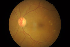 Foto médica de la patología retiniana, desordenes del sclera, córnea, catarata Fotos de archivo libres de regalías