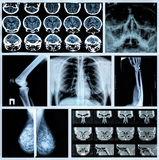 Fotocollage: Radiographie von menschlichen Knochen Stockfoto