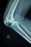 Fotografi för röntgenstråle för höger knäskarv Arkivfoton