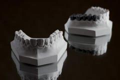 Fotografia da maxila mais baixa em um fundo preto Fotos de Stock