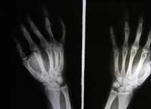 Fotos de la radiografía de los pacientes de la fractura de hueso Imágenes de archivo libres de regalías