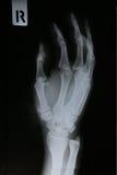 Fotos de la radiografía de los pacientes de la fractura de hueso Fotografía de archivo libre de regalías