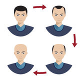 Four stages of hair loss for men. Stock Photography