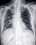 Främre röntgenstrålebild av hjärta och bröstkorgen Royaltyfri Bild