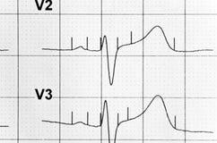 Fréquence cardiaque photographie stock libre de droits