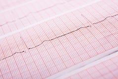 Fréquence cardiaque sur l'impression médicale à l'extérieur Images libres de droits
