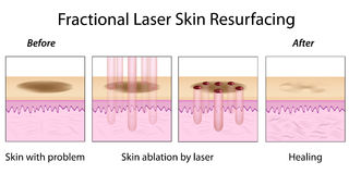 Fractional Laser Skin Resurfacing stock illustration