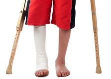 Fractura de la pierna Imágenes de archivo libres de regalías