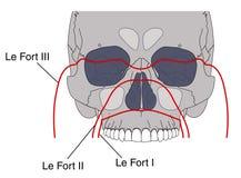 Fracturas faciales Imagen de archivo libre de regalías