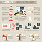 Fracture Bone Infographics Royalty Free Stock Image