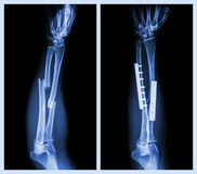 Fracture both bone of forearm. It was operated and internal fixed with plate and Royalty Free Stock Image