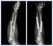 Fracture both bone of forearm. It was operated and internal fixed with plate and screw Stock Images