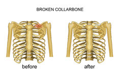 Fracture of the clavicle. recovery. Vector illustration of a broken collarbone. recovery Royalty Free Stock Photos