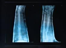 Fracture de bras vue sur le rayon X Photographie stock