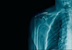 Fracture de clavicule d'image de rayon X photos stock