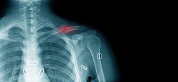 Fracture de clavicule de rayon X image stock
